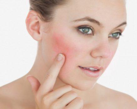 Rosácea Causas - Síntomas y Tratamiento